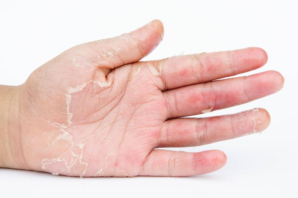 droge handen